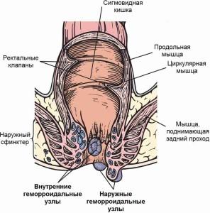 Геморроидальные узлы (схема)