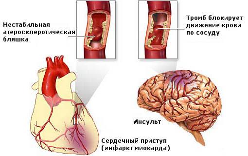 Атеросклероз. Инсульт. Инфаркт.